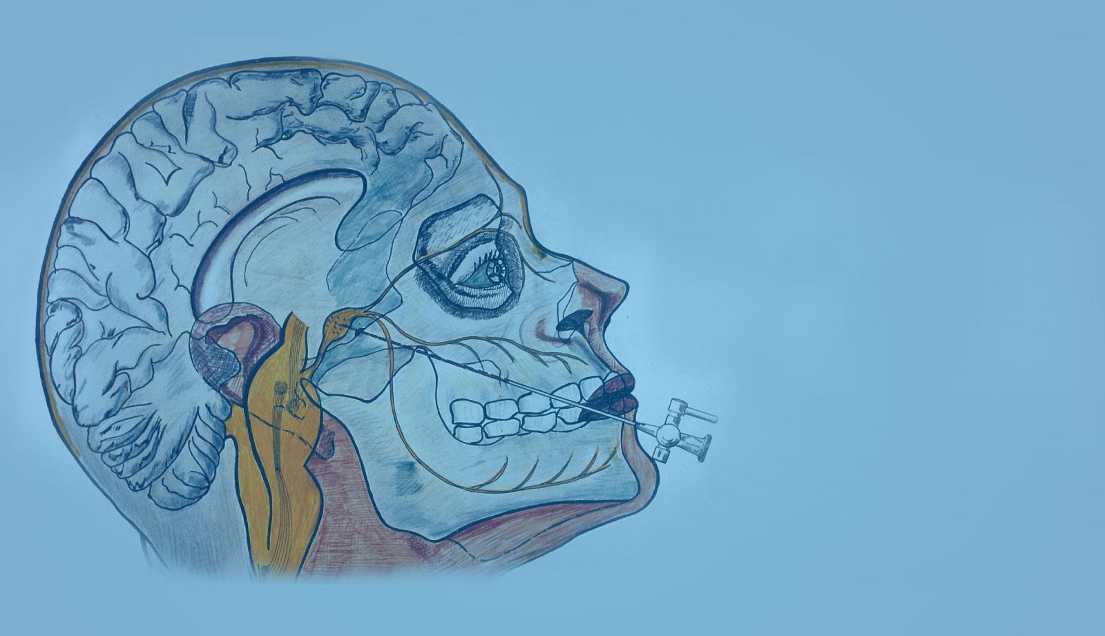 Nevralgia del trigemino: la neurolisi con fluoroscopia mirata nel ganglio di gasser